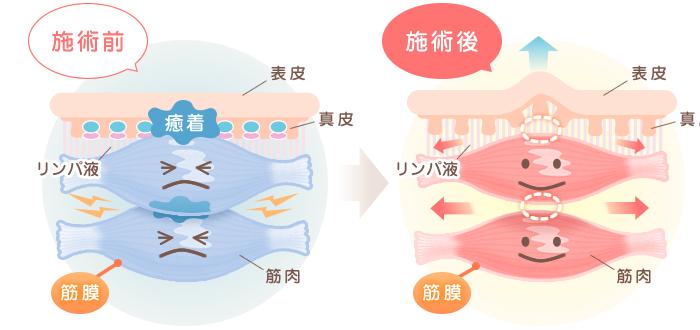 筋膜リリース施術前から施術後への変化のイラスト