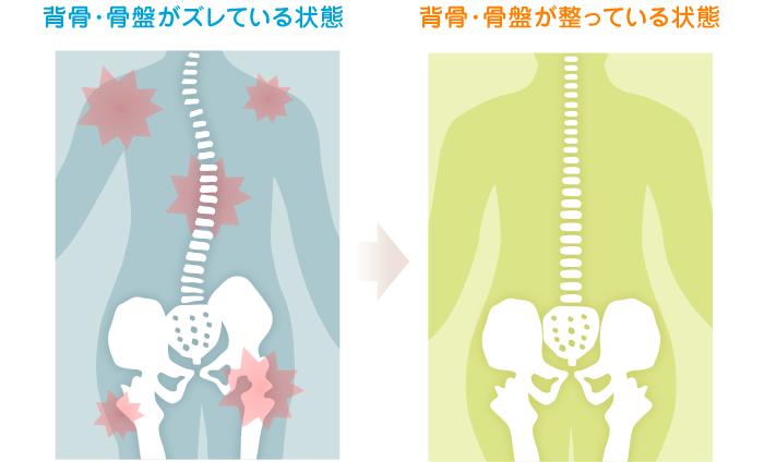 背骨・骨盤がズレている状態から、背骨・骨盤が整っている状態になるイラスト